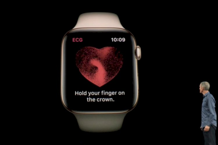 Apple Watch Finally Gets ECG Support in India: Here's How it Works