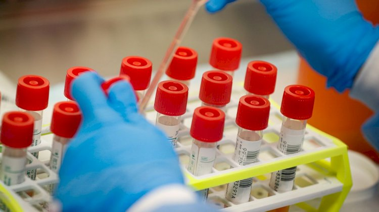 Made In India 'Coronavirus Testing Kit' Ready, Gets Approval